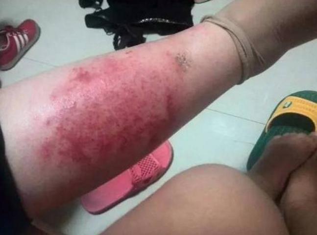 过敏性湿疹真菌感染老烂腿怎么治疗?怎么才能治疗好?