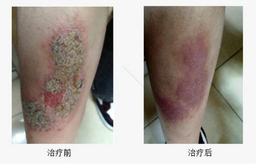 过敏性湿疹怎么治疗.png