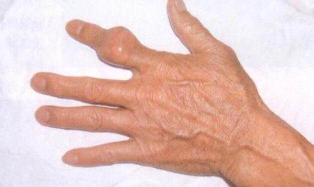 痛风治疗的最大误区:降了尿酸就能根治疗痛风