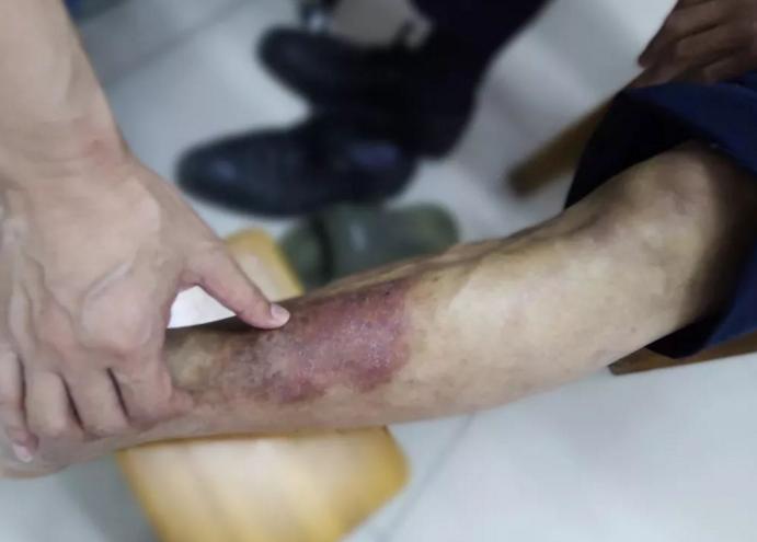 糖尿病足老烂腿怎么才能治疗好?怎么能使伤口愈合