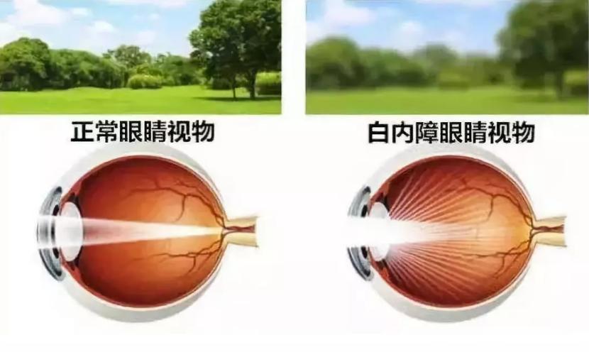 什么肽能治疗白内障,吃哪些肽对眼睛最好