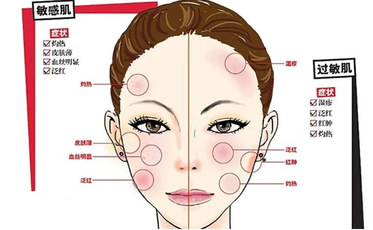 干细胞注射对敏感性皮肤效果怎么样,干细胞疗法对皮肤的好处