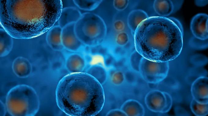 干细胞注射能治疗痛风吗.png